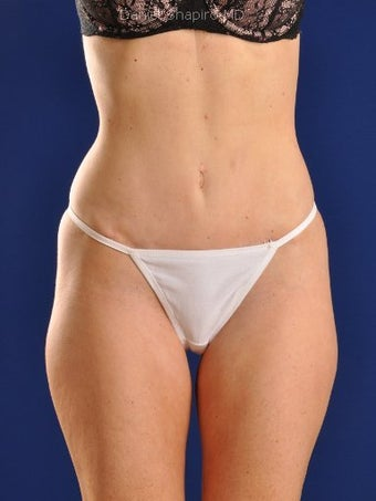 Tummy Tuck Revision with Vaser Liposuction of the abdomen after 422791