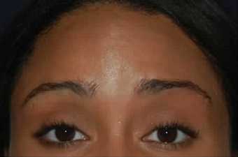 Botox to Treat Horizontal Forehead Lines after 53757