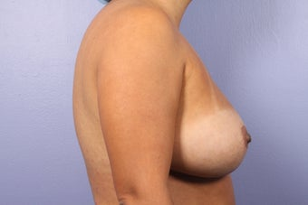 Breast Implant Revision before 622844