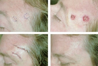 MOHS Skin Cancer Surgery before 369214