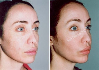 Non-Surgical Face Lift- Exoderm  before 242984
