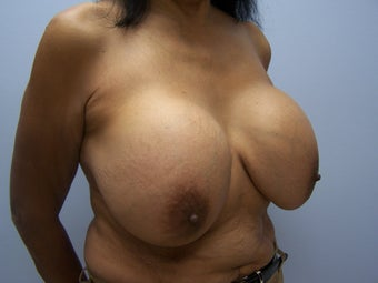 Breast implant removal and breast lift 589930