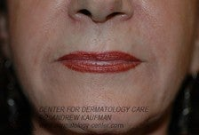 Dermal Filler Injection to Marionette and Accessory Smile Lines after 315163