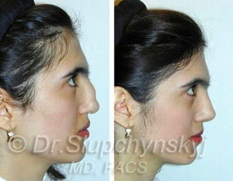 Ethnic Rhinoplasty after 374051