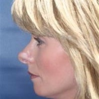 Revision Rhinoplasty 442999