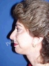 Chin Implants 622585