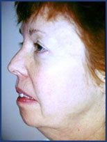 Mid facelift, lower facelift and upper blepharoplasty before 83177
