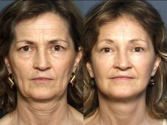 Eyelid Surgery & Facelift before 337408