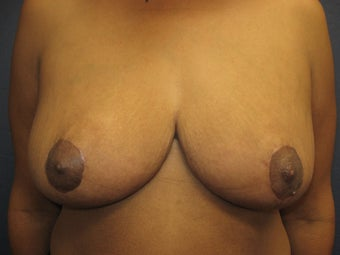 Breast Reduction after 291348
