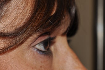 Bilateral upper eyelid blepharoplasty after 493457