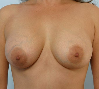 Breast Augmentation after 260940