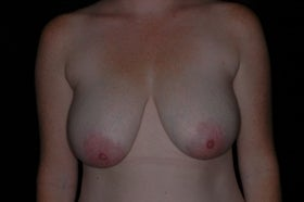 Vertical Mastopexy before 336545