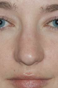 Rhinoplasty before 390972