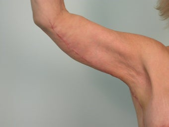 Arm Lift / Brachioplasty after 201271