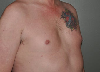Pec Implants 521679