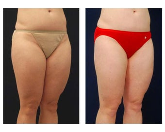 Liposuction 397096