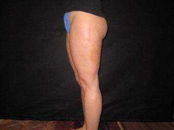 Cellulite Treatment after 491259