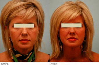 Injectable Fillers (Restylane/Perlane) before 136784