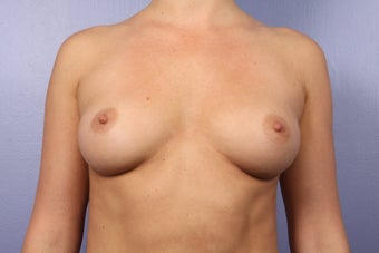 Breast Augmentation before 338709