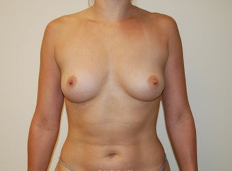 Breast Augmentation before 397787