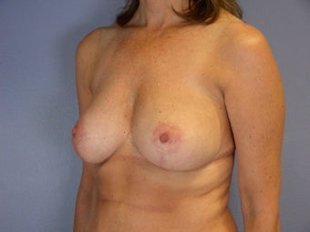 Breast Reduction  after 306344