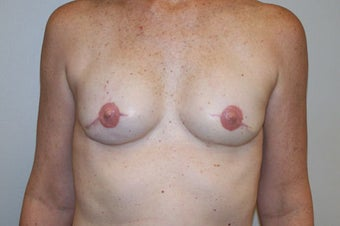 Bilateral mastectomy with reconstruction with 2-stage tissue expander/permanent implant technique
