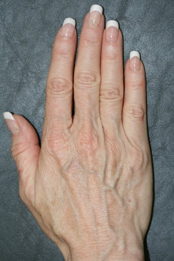 Radiesse treatment for hand rejuvenation before 165259