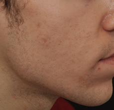 Acne Scarring after 426027