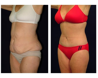 Tummy Tuck or Abdominoplasty before 283083
