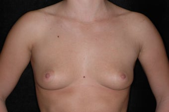 Breast Augmentation before 336380