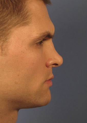Revision Rhinoplasty 410605