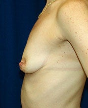 Breast augmentation with mastopexy before 101313