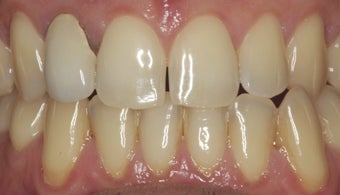 EMAX crown and extreme whitening treatment. before 349670