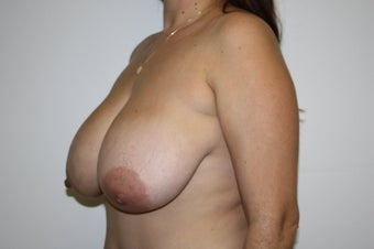 Breast reduction before 211372