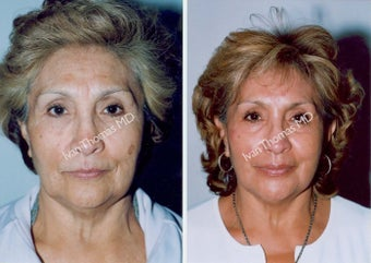 Non-Surgical Face Lift- Exoderm  before 242991
