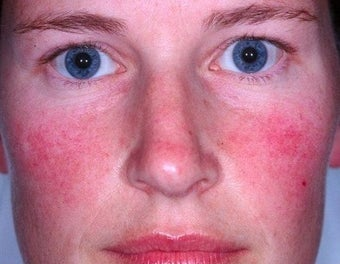 Laser treatment for rosacea  before 374539