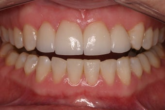 porcelain crowns to close space after 336722