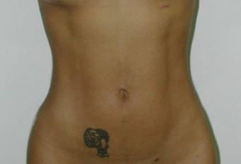 Vaser Liposuction before 229660