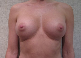 Breast Augmentation after 346178