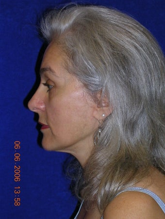 Facelift, Eyelid lift after 466424
