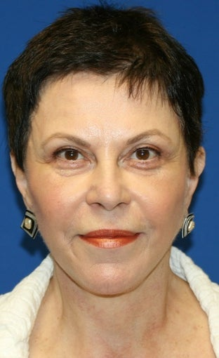 Facelift with Extended Necklift, Browlift, Fat Transfer, Upper Blepharoplasty, and Skin Pinch after 625450