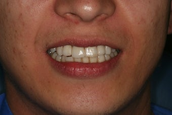 Anterior all ceramic crowns after 559113