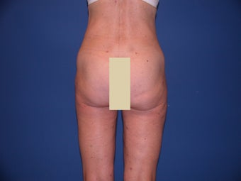 Thigh Liposculpture after 66003
