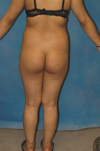 Women's Buttocks Augmentation 518130