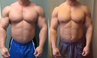 Gynecomastia before 350680