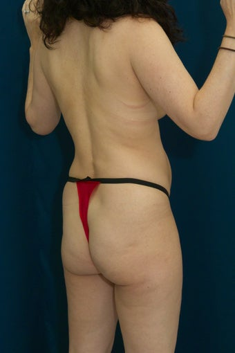 Brazilian Butt Lift and Tummy Tuck before 615904