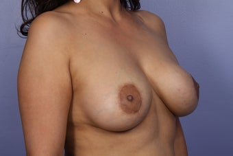 Breast Lift / Breast Augmentation  after 291026