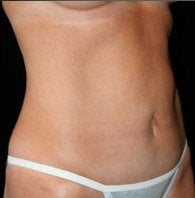 Mini Tummy Tuck after 411082