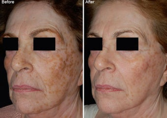 Fraxel Laser Resurfacing before 97774