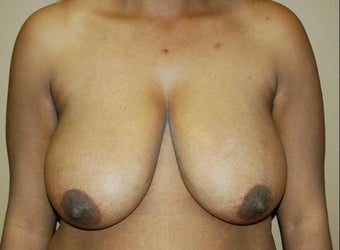 Breast reduction before 260534